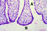 Tip of Renal Crest Dog (MS E55 25X)